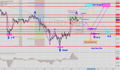 XAUUSD: Gold 1H Forecasting (Rev.2)