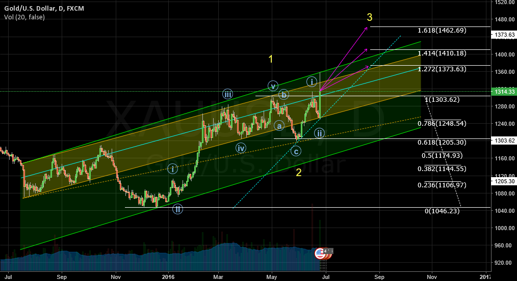 Gold (XAUUSD) Trading Guide